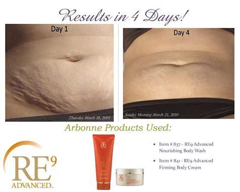 arbonne stretch mark cream picture 9