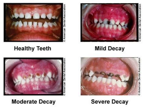 children's normal teeth images picture 2
