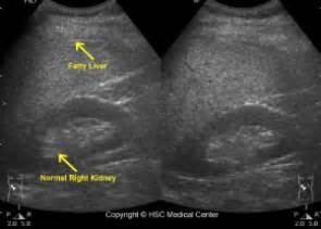 telling the difference of liver cysts picture 5