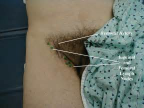 female doctor checking hernia picture 6