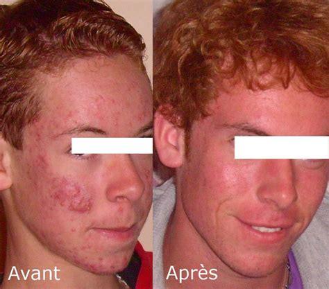acne rosecea picture 7