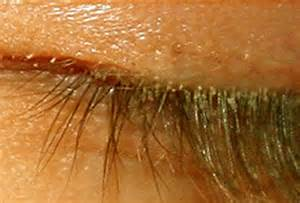 rosacea and mites picture 7