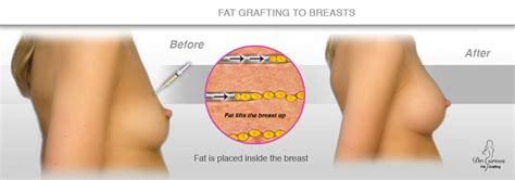 breast enhancement via fat transfer picture 3