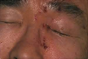early signs of herpes picture 5