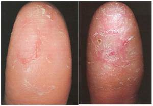 skin diseases causing white itchyless patches in the fingers and feet picture 15