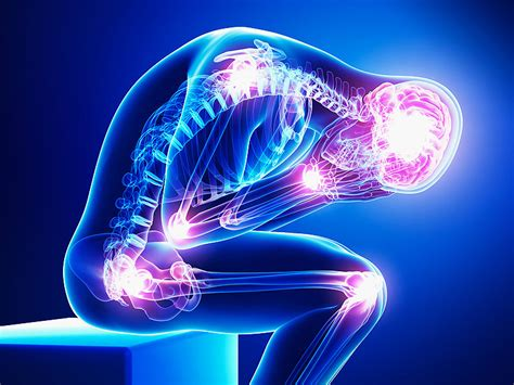 chronic pain picture 11