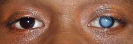 quantumin eye drops picture 10