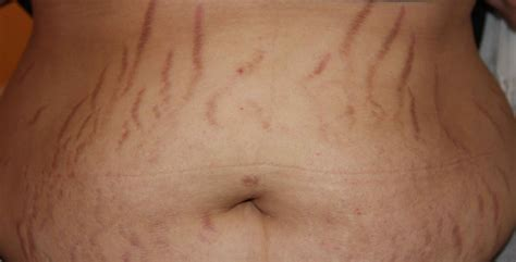 how can i get rid of my stretch marks for free picture 1