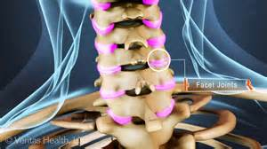 facet joint pain picture 6
