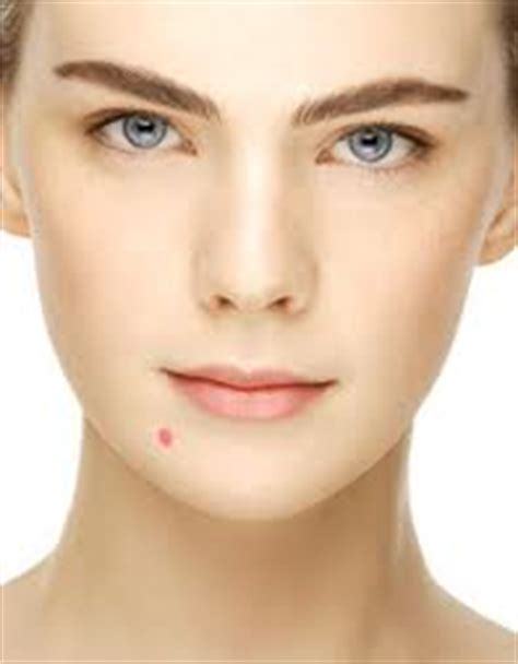 what is the cause for acne picture 5
