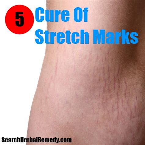 stretch mark cures picture 3