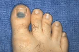 skin under toe picture 14