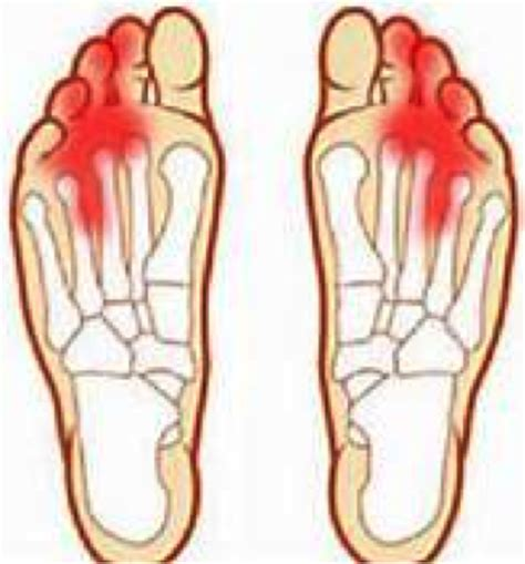 causes feeling of legs foot and hands asleep picture 7