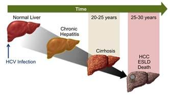 hep c and liver damage after treatment picture 1