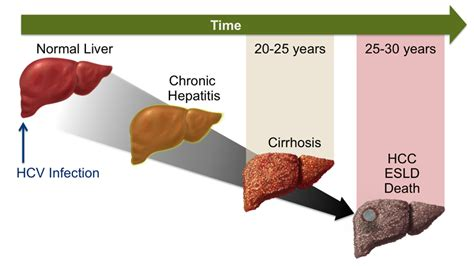 liver failure progression picture 11
