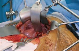 liver transplant surgery picture 5