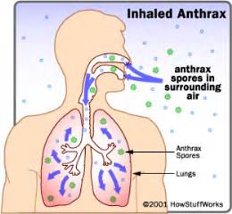 gastrointestinal flu picture 11