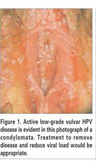 vaginal wart pictures picture 2