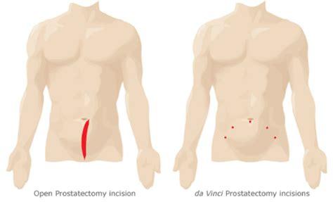 Da vinci prostate picture 9