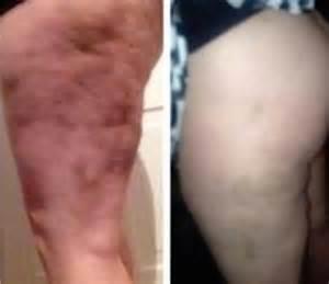 otc cellite treatment walgreen picture 1