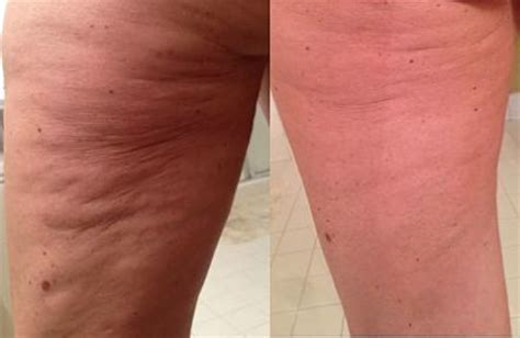 best anti cellulite cream picture 6