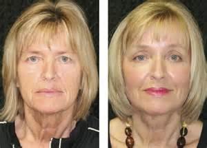 javani skin rejuvenation in miami picture 10