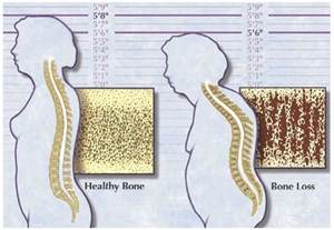 does thriod medications cause bone loss picture 2
