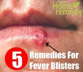 fever lip blister picture 14