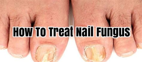 how to cure nail fungus picture 10
