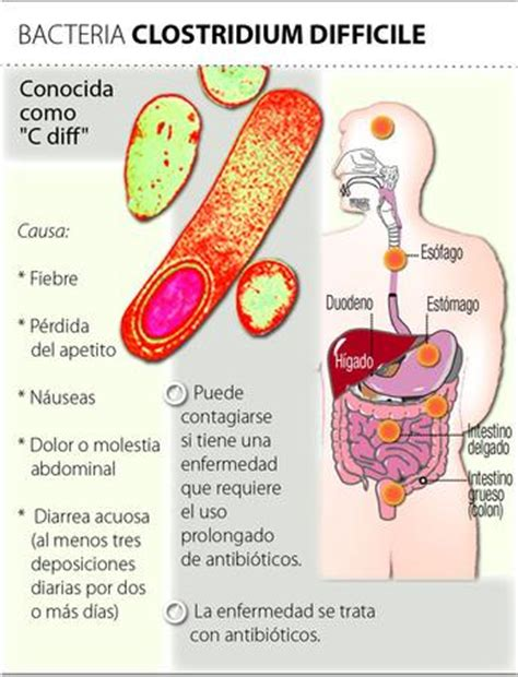 intestinal infections c diff picture 6