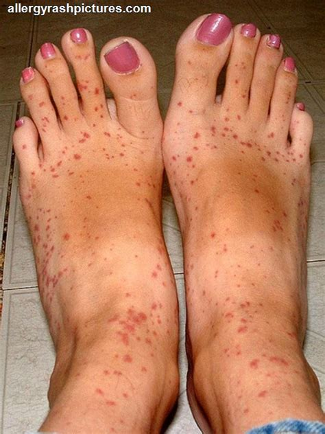 do allergies thining of skin picture 10