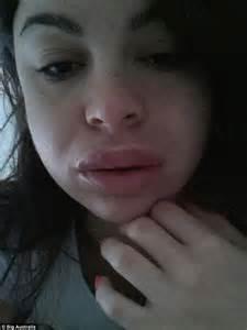 free pics swollen lips picture 5