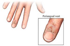 get rid of warts under fingernail picture 5