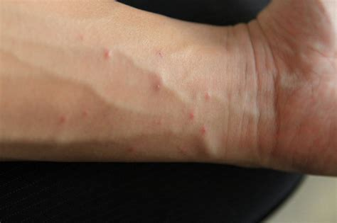 show me skin rashes picture 5