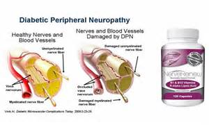 natural treatment for diabetic neuropathy picture 2