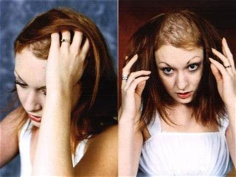 causes of hair pulling picture 15