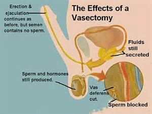 will a vasectomy stop pre ejaculation picture 3