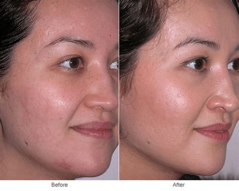 acne scars skin care picture 10