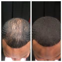 hair regrowth for men india picture 9