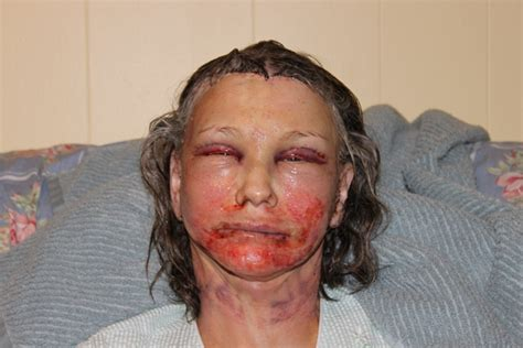 breast enhancement surgery picture 6