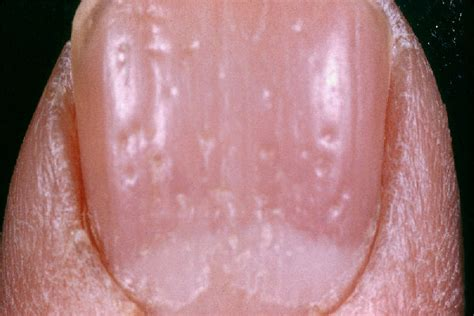 can thyroid cause red scalp picture 9