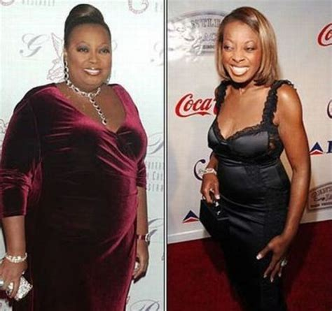 star jones weight loss surgery picture 1
