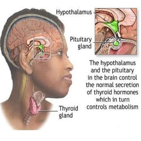 h whitening and thyroid disease. picture 5