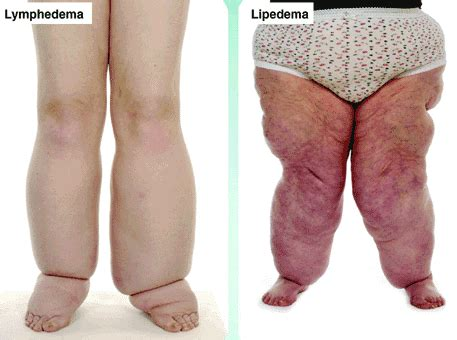 lymphedema skin disorder picture 13