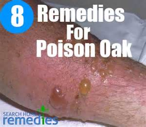 herbal cures for poison oak picture 7