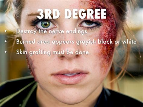 skin burns picture 5