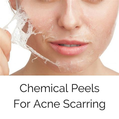 chemical pel acne treatment series picture 5