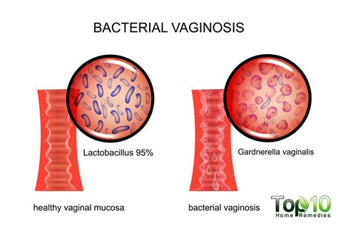 hard to treat bacterial vaginosis picture 1