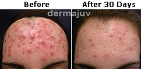 acne scar reduction system by dermajuv picture 8