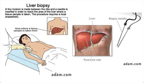 complications of a liver biopsy picture 13